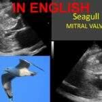 Seagull mitral valve